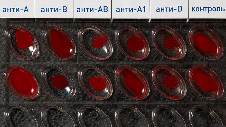 планшет для типирования крови